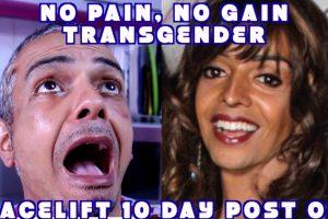 Transgender Facelift FFS 10 Day Post Op Dr. Jacono