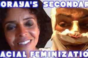 Soraya's Secondary Facial Feminization Surgery Transgender